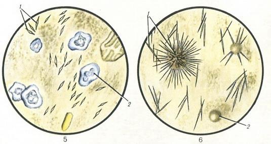 Кристаллы оксалаты в кале