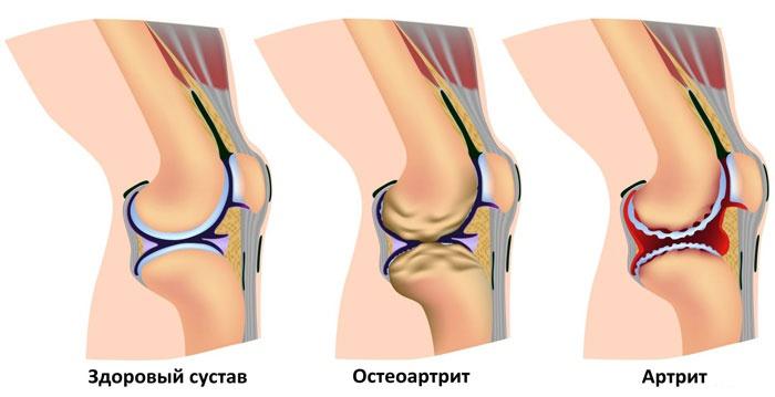 Лечение суставов в николаеве измерение подвижности в плечевом суставе